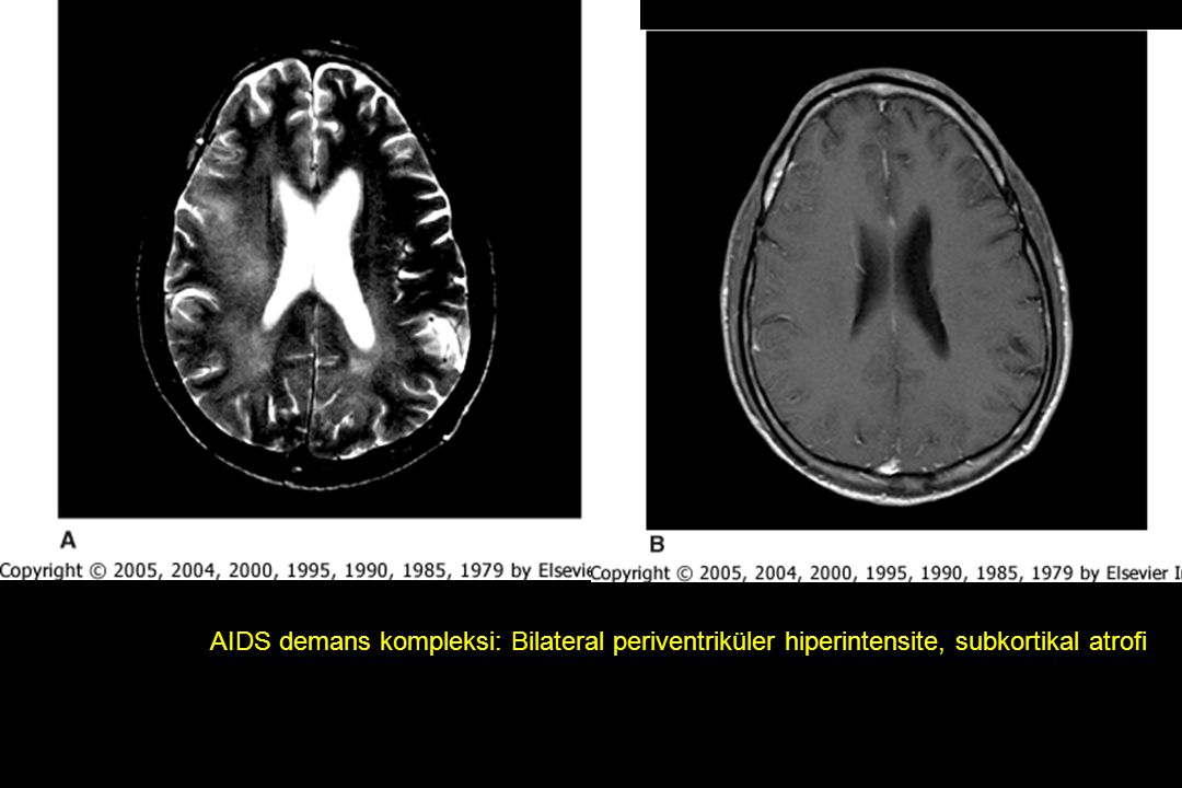 Figure 120-1 Brain magnetic resonance images of a 42-year-old man with acquired immunodeficiency syndrome dementia. The T2-weighted image (A) shows bilateral, ill-defined hyperintense signal in the periventricular white matter and centrum semiovale, which do not enhance with gadolinium injection on the T1-weighted image (B). The ventricles are slightly enlarged, consistent with subcortical atrophy.