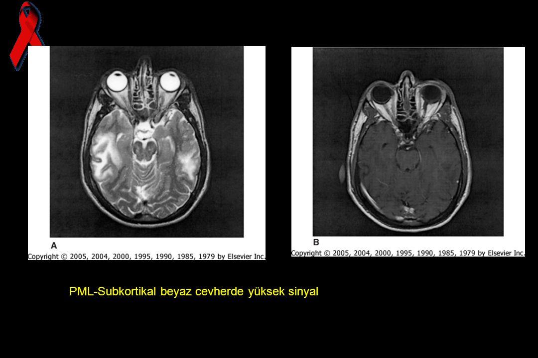 PML-Subkortikal beyaz cevherde yüksek sinyal
