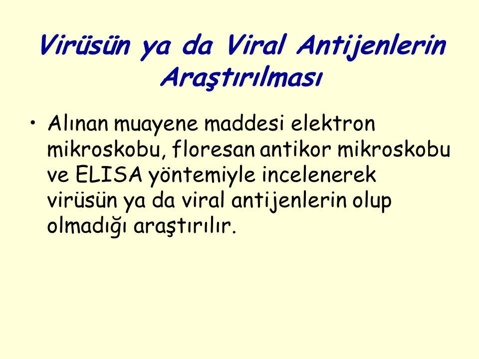 Virüsün ya da Viral Antijenlerin Araştırılması