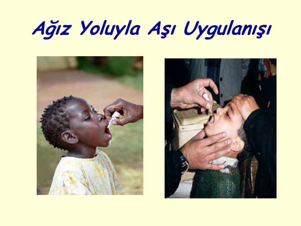 Ağız Yoluyla Aşı Uygulanışı
