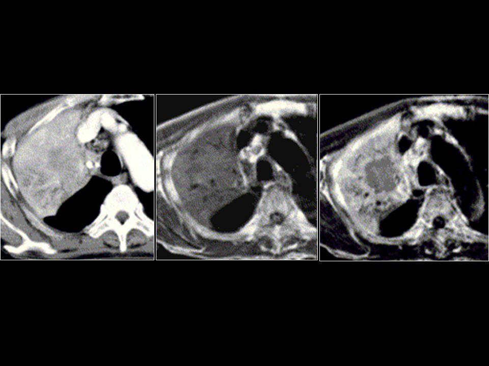 Kontrastlı BT'de tümör ve obstrüktif pnömoni ayrımı yapmak