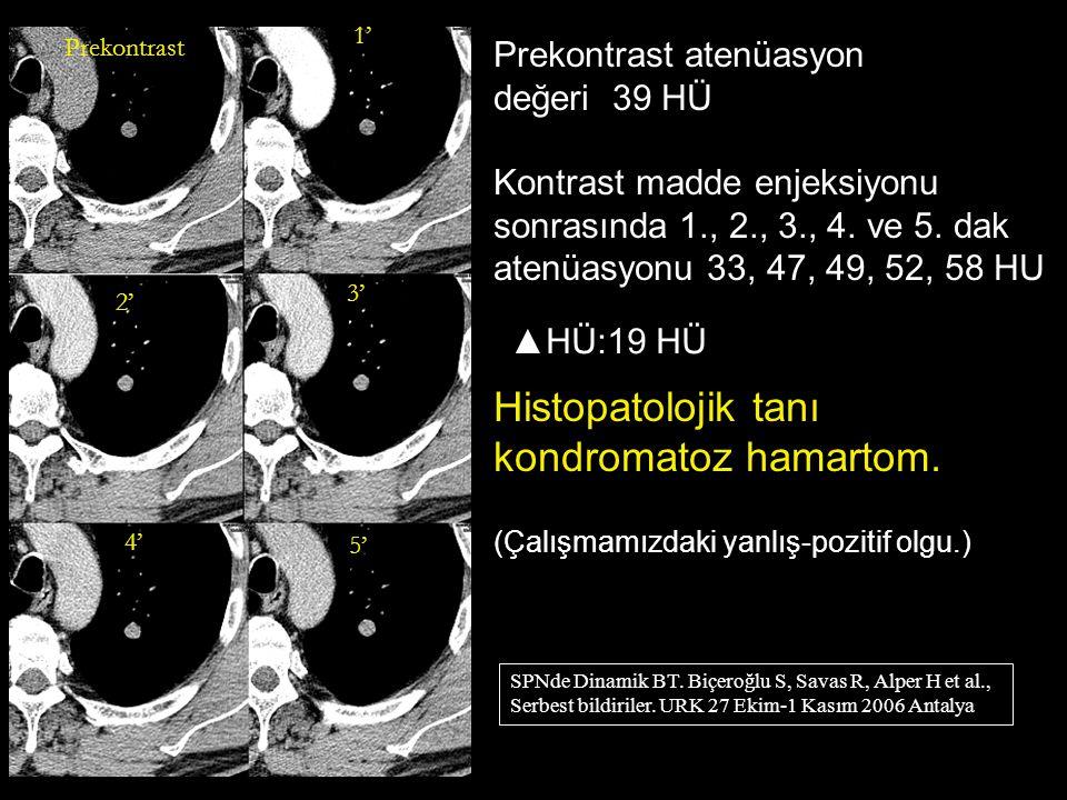 Histopatolojik tanı kondromatoz hamartom. Prekontrast atenüasyon
