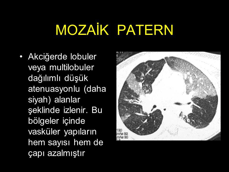 MOZAİK PATERN