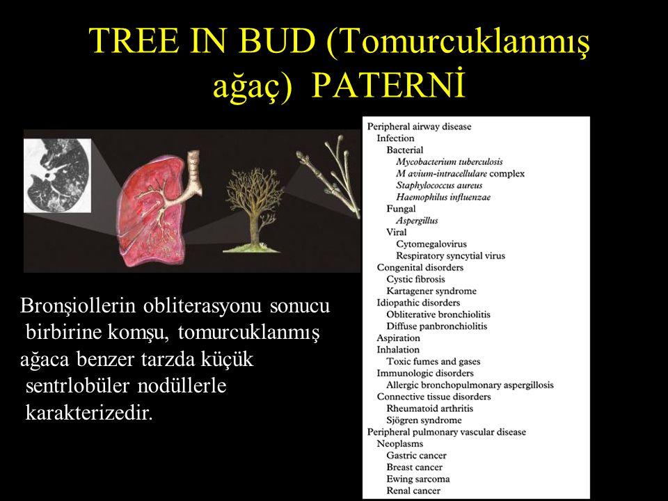 TREE IN BUD (Tomurcuklanmış ağaç) PATERNİ