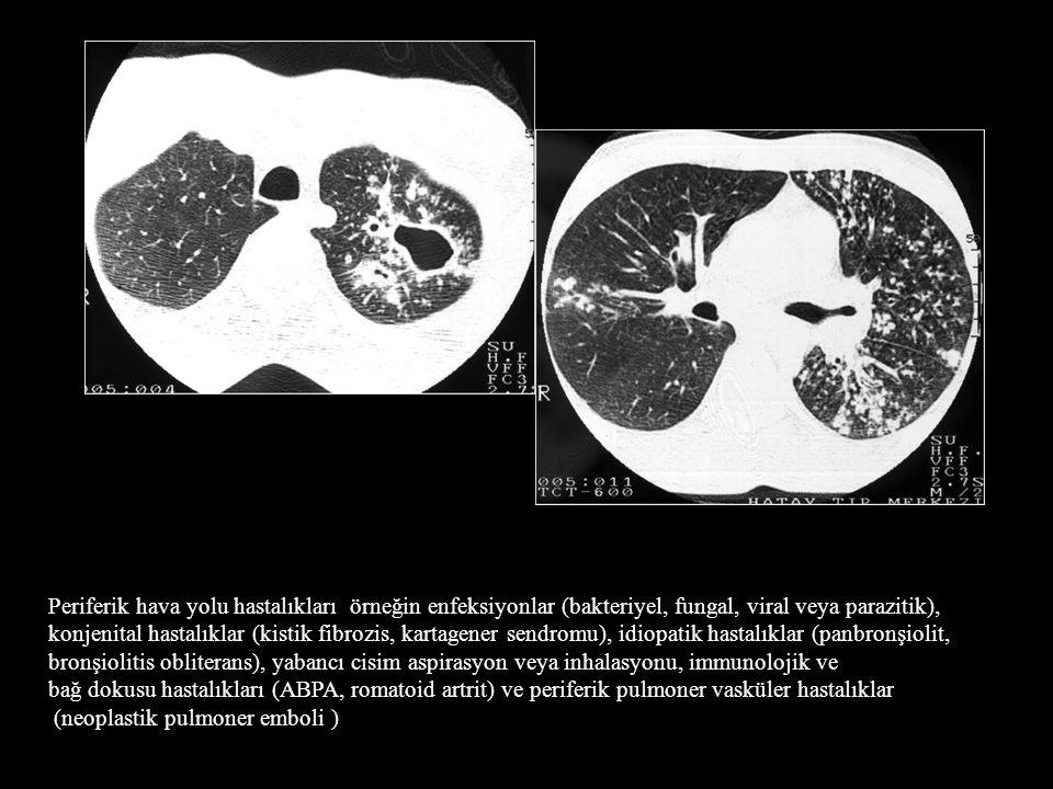 Periferik hava yolu hastalıkları örneğin enfeksiyonlar (bakteriyel, fungal, viral veya parazitik),