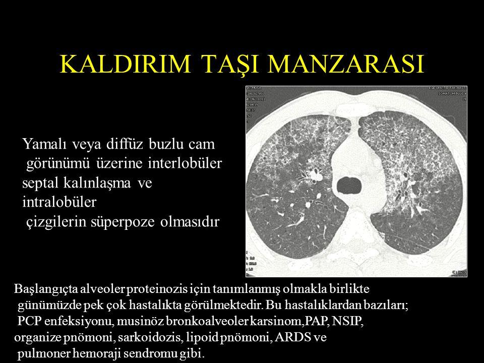KALDIRIM TAŞI MANZARASI