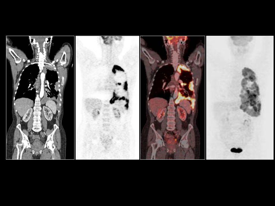 Serafettin gürsoy plevral karsinomatozis
