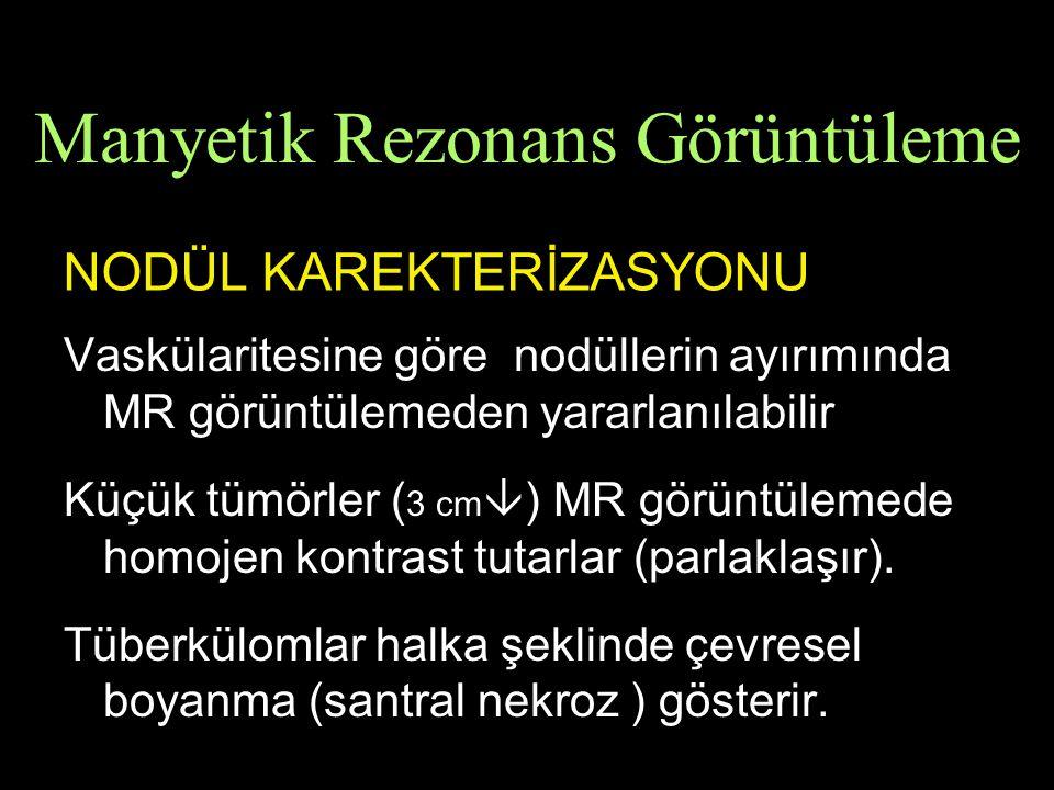 NODÜL KAREKTERİZASYONU