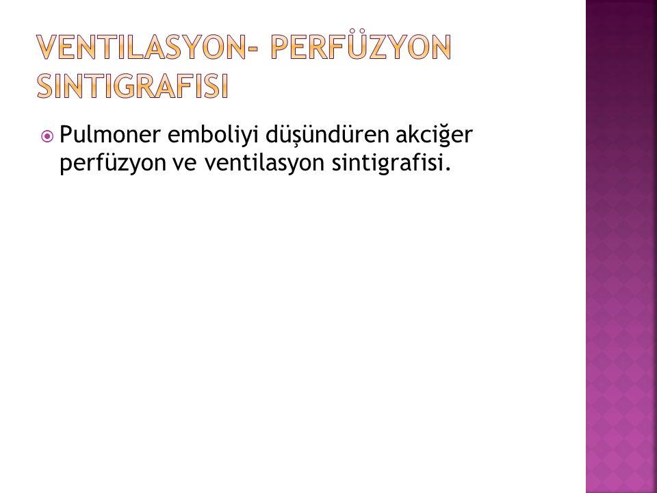 Ventilasyon- Perfüzyon Sintigrafisi