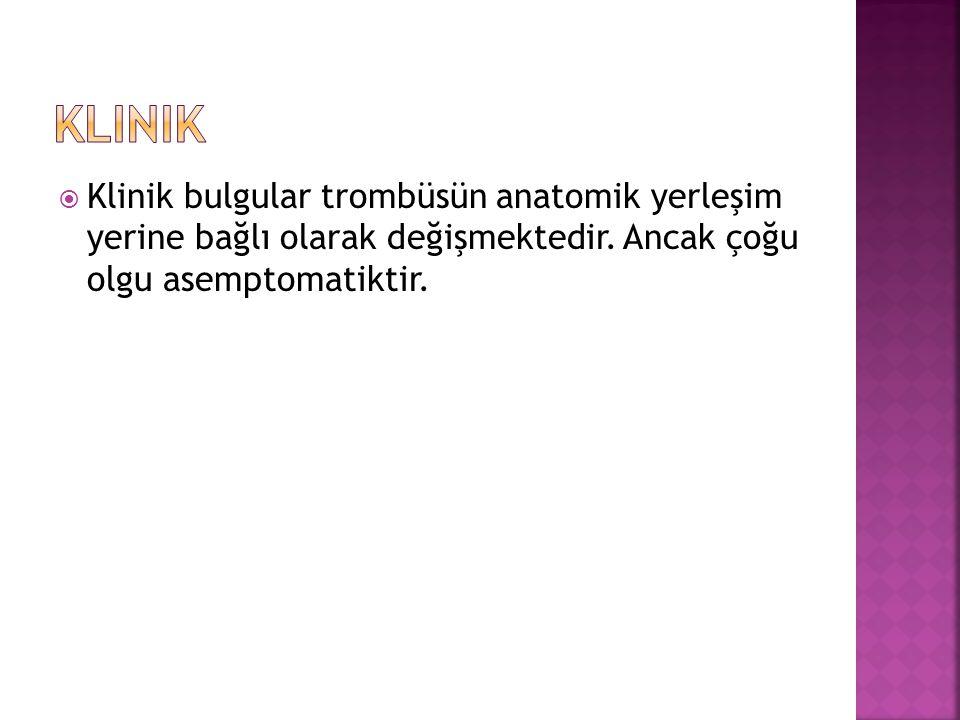 Klinik Klinik bulgular trombüsün anatomik yerleşim yerine bağlı olarak değişmektedir.