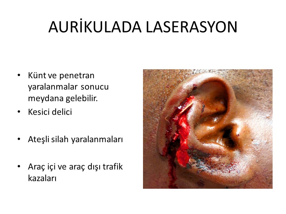 AURİKULADA LASERASYON