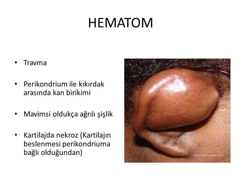 HEMATOM Travma Perikondrium ile kıkırdak arasında kan birikimi