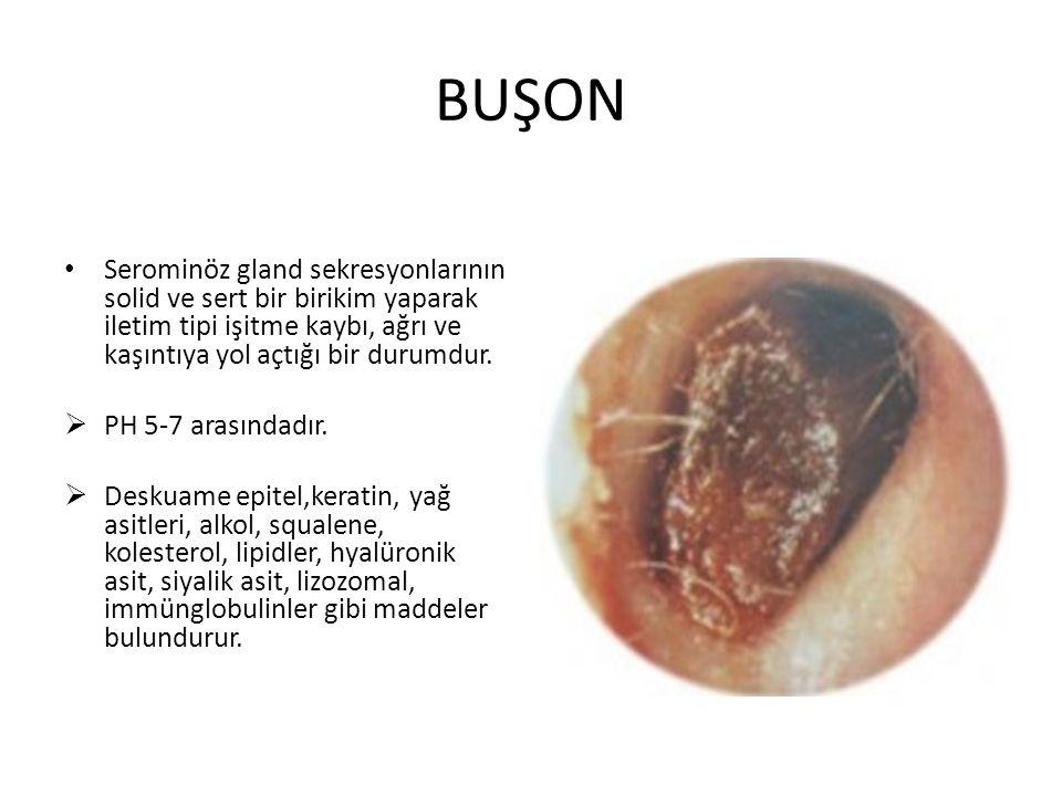BUŞON Serominöz gland sekresyonlarının solid ve sert bir birikim yaparak iletim tipi işitme kaybı, ağrı ve kaşıntıya yol açtığı bir durumdur.
