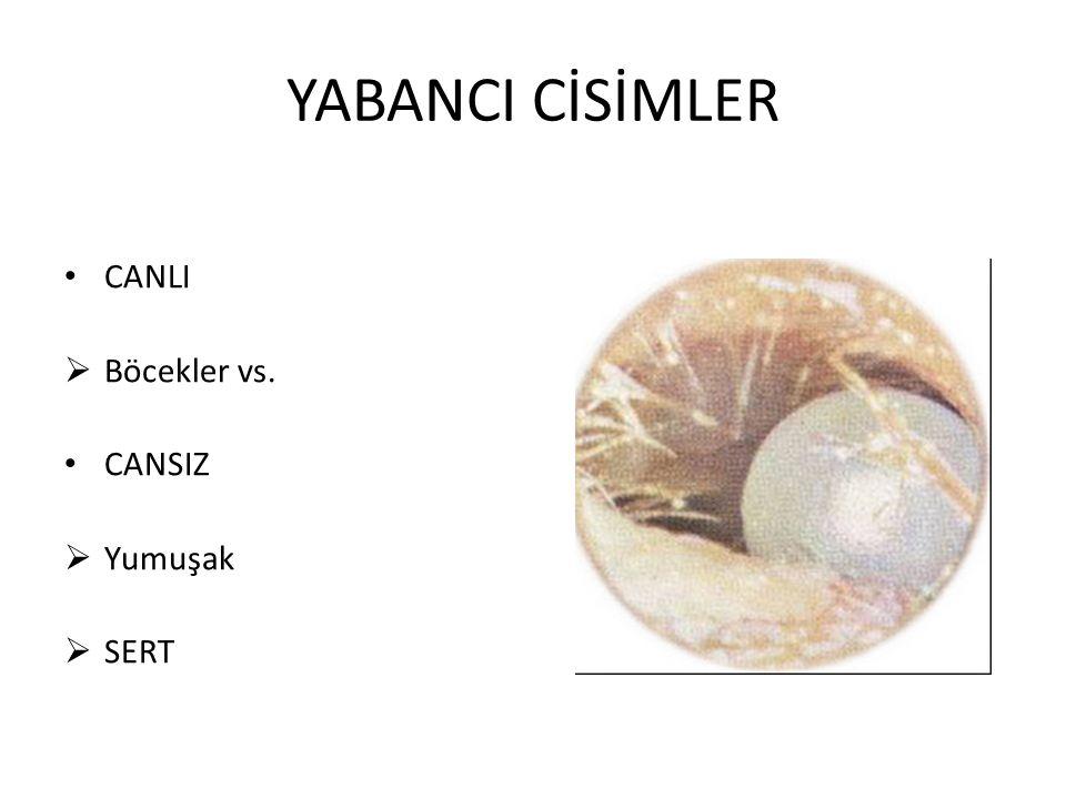 YABANCI CİSİMLER CANLI Böcekler vs. CANSIZ Yumuşak SERT