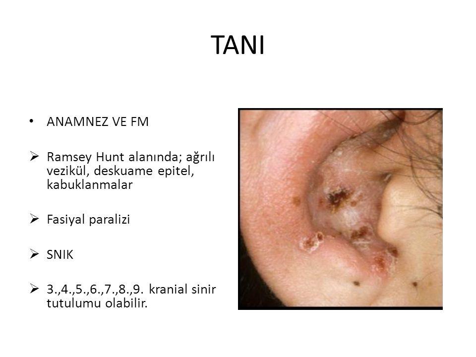 TANI ANAMNEZ VE FM. Ramsey Hunt alanında; ağrılı vezikül, deskuame epitel, kabuklanmalar. Fasiyal paralizi.