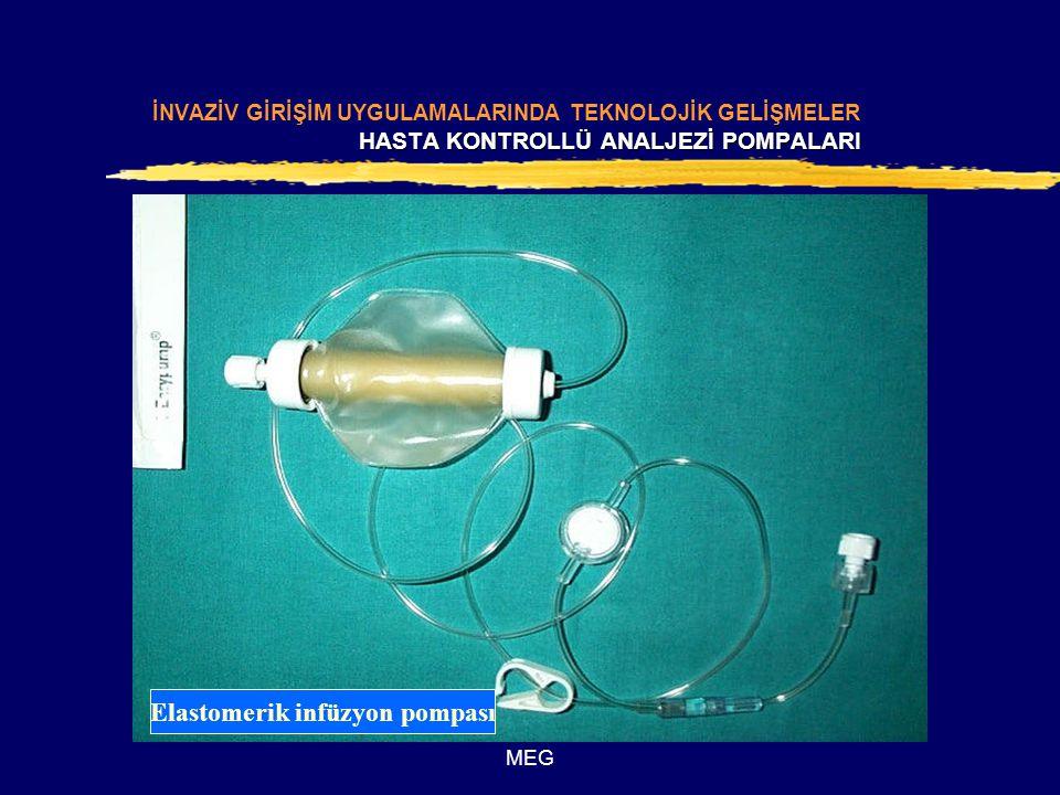 Elastomerik infüzyon pompası