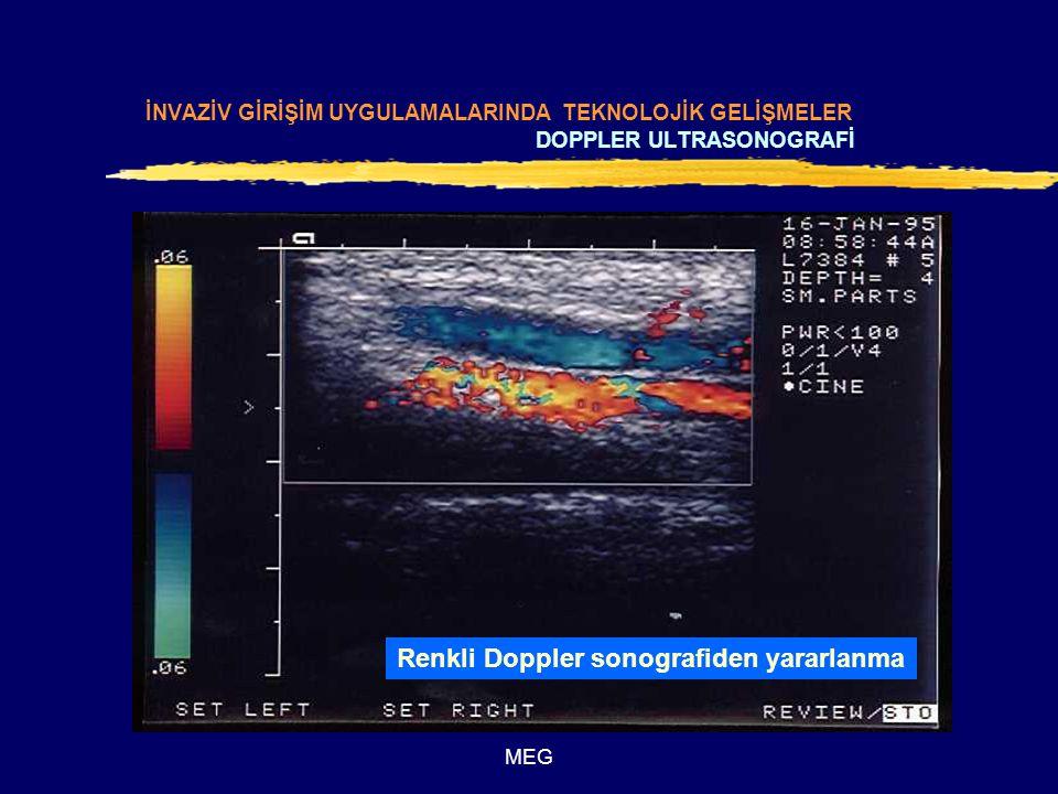 Renkli Doppler sonografiden yararlanma