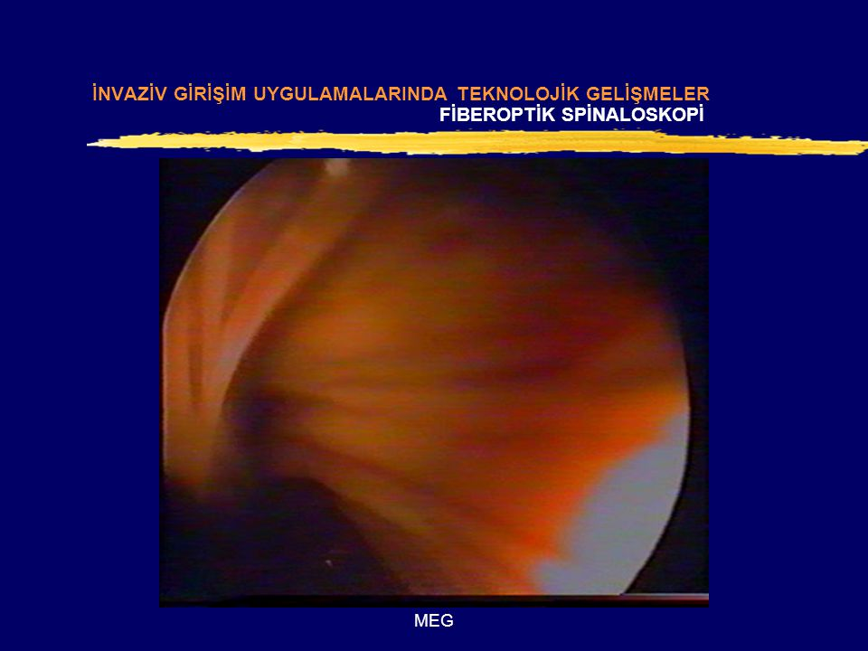 Fiberoptik Spinaloskopi