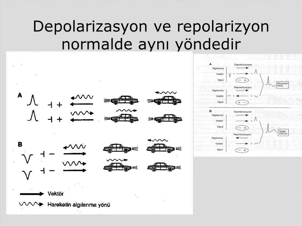 Depolarizasyon ve repolarizyon normalde aynı yöndedir