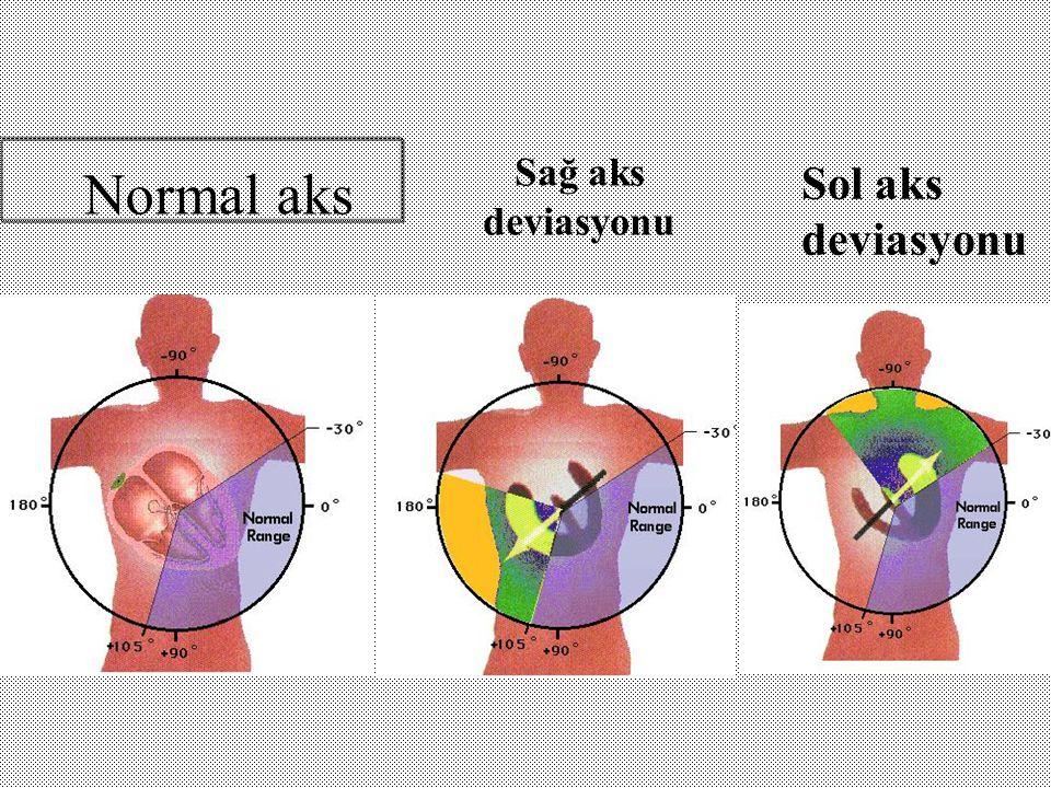 Sağ aks deviasyonu Normal aks Sol aks deviasyonu