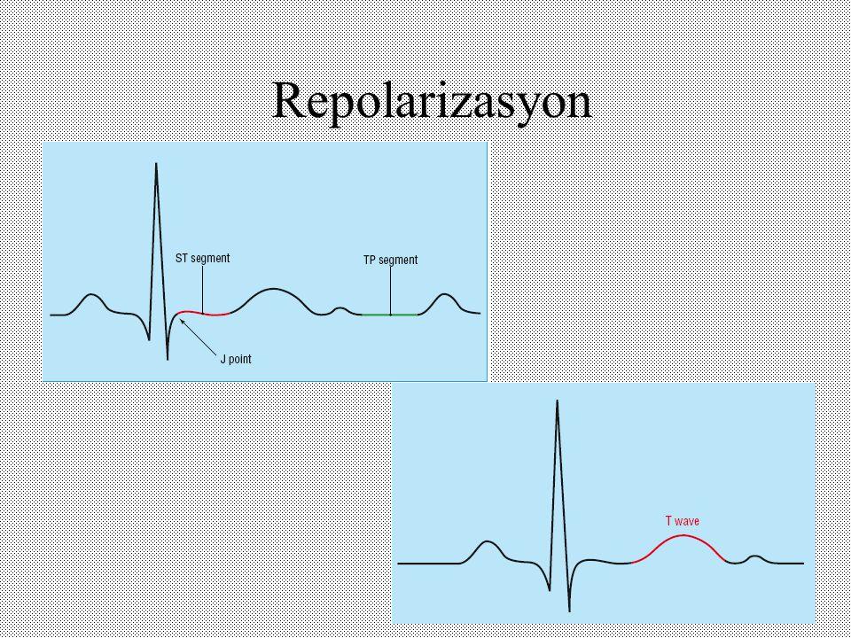 Repolarizasyon