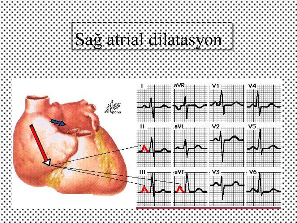 Sağ atrial dilatasyon