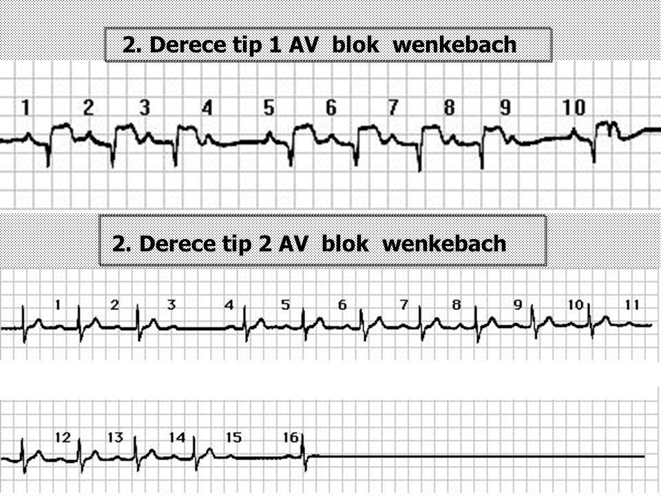2. Derece tip 1 AV blok wenkebach