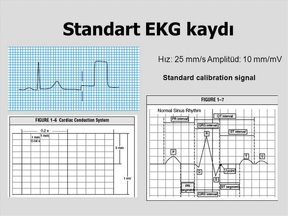 Standart EKG kaydı Hız: 25 mm/s Amplitüd: 10 mm/mV