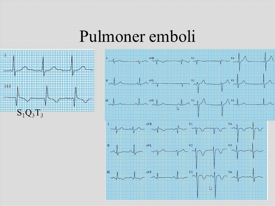 Pulmoner emboli S1Q3T3