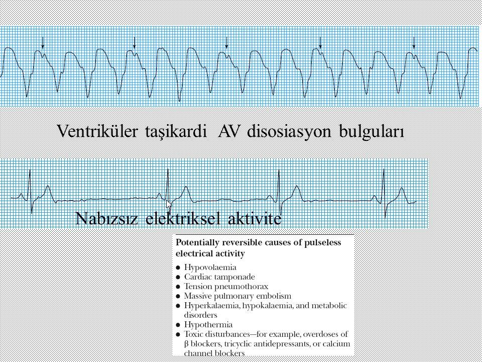 Ventriküler taşikardi AV disosiasyon bulguları
