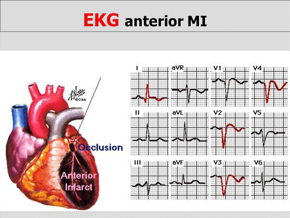 EKG anterior MI