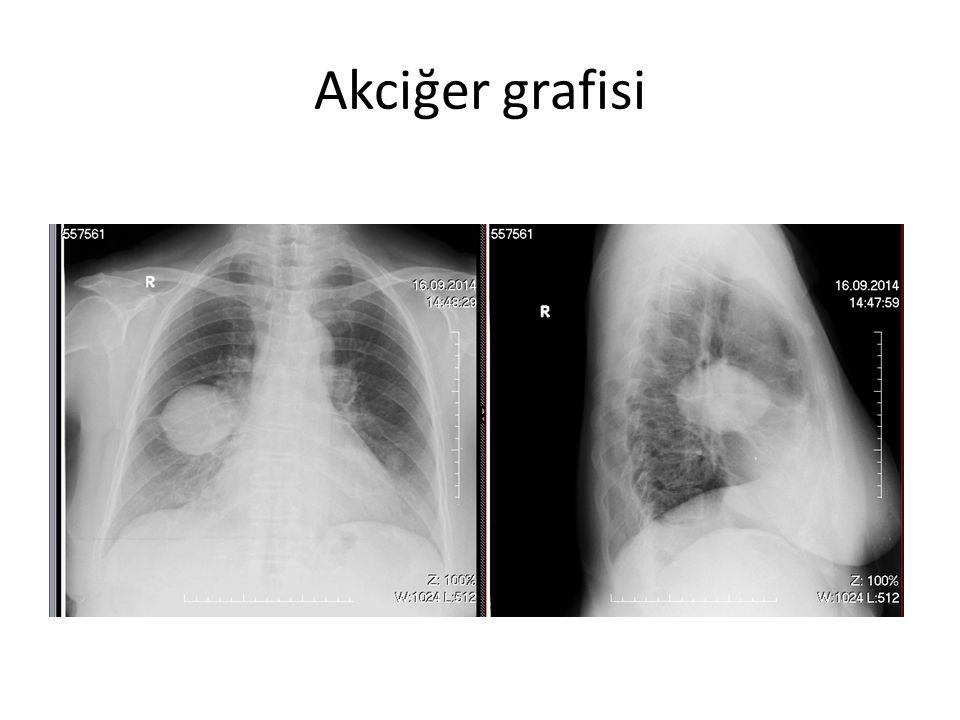 Akciğer grafisi