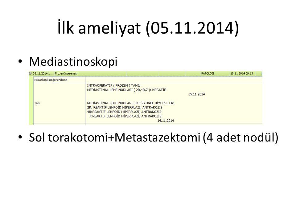 İlk ameliyat (05.11.2014) Mediastinoskopi