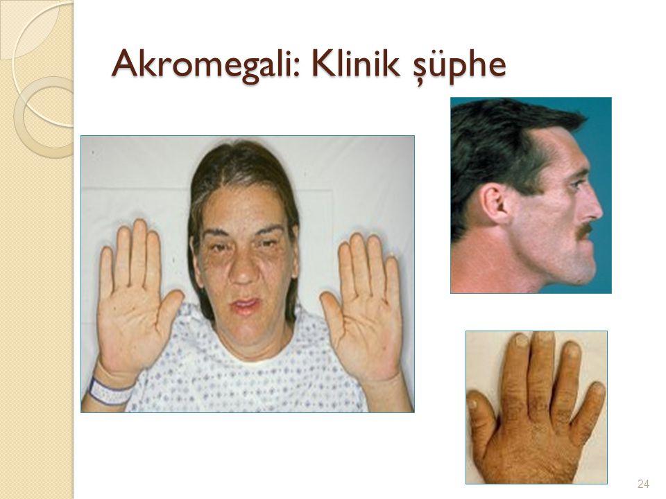 Akromegali: Klinik şüphe