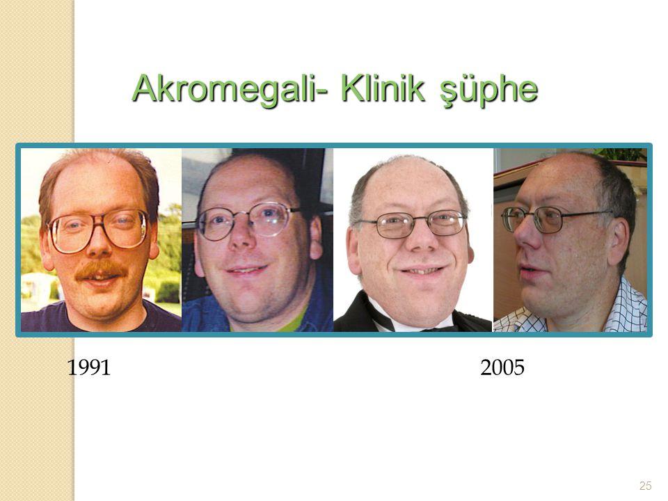 Akromegali- Klinik şüphe
