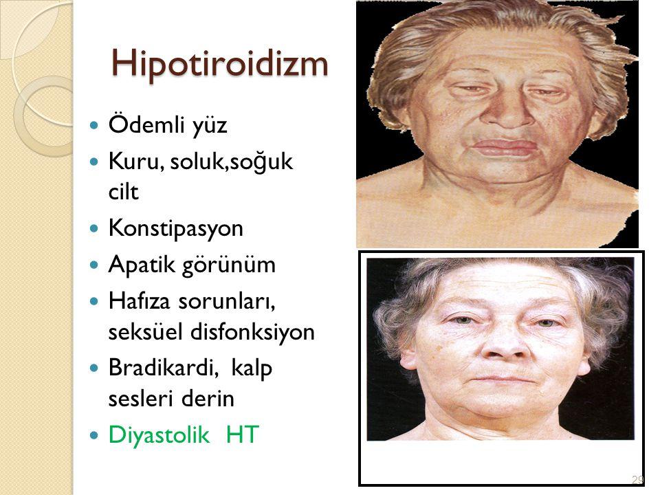 Hipotiroidizm Ödemli yüz Kuru, soluk,soğuk cilt Konstipasyon