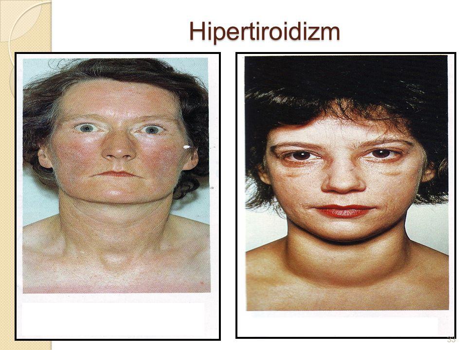 Hipertiroidizm