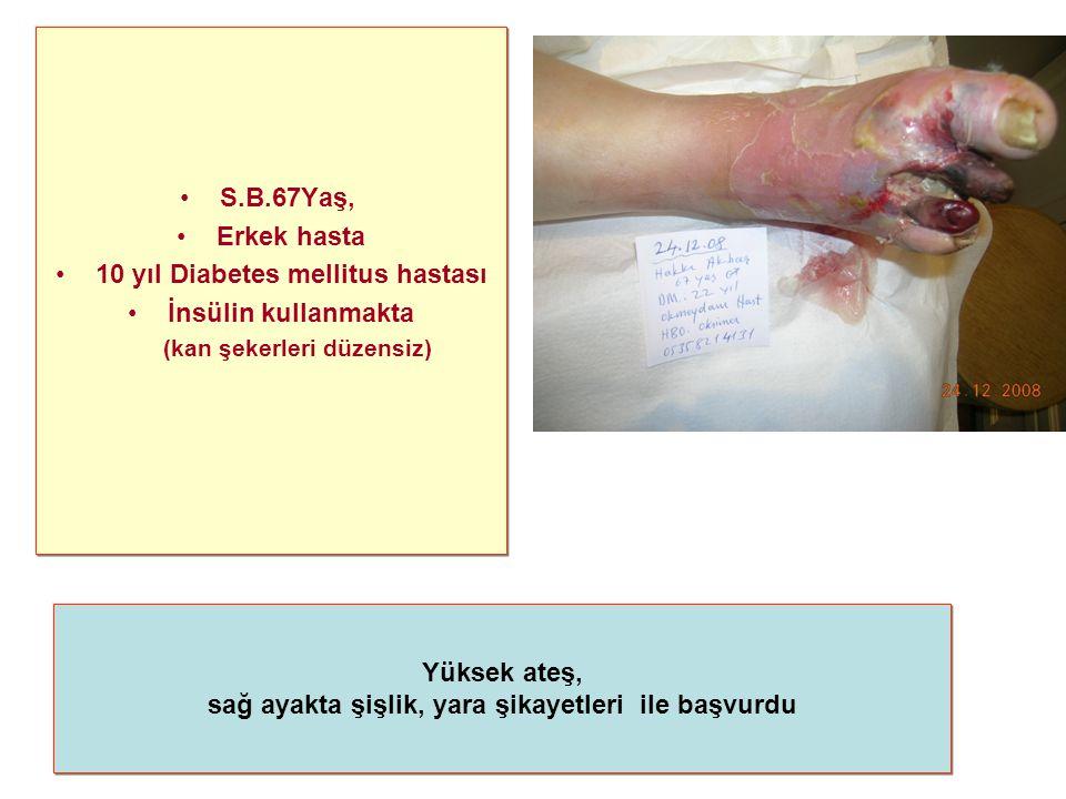 10 yıl Diabetes mellitus hastası İnsülin kullanmakta