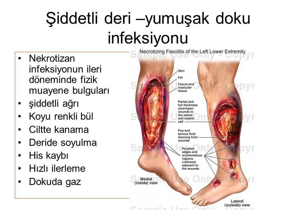 Şiddetli deri –yumuşak doku infeksiyonu