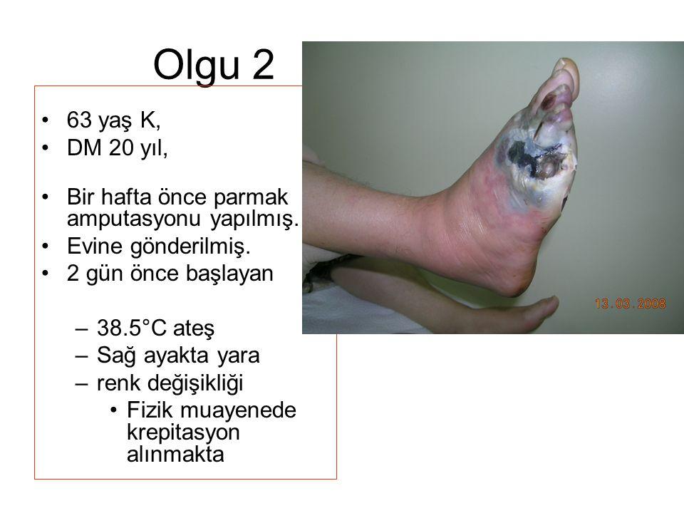 Olgu 2 63 yaş K, DM 20 yıl, Bir hafta önce parmak amputasyonu yapılmış. Evine gönderilmiş. 2 gün önce başlayan.