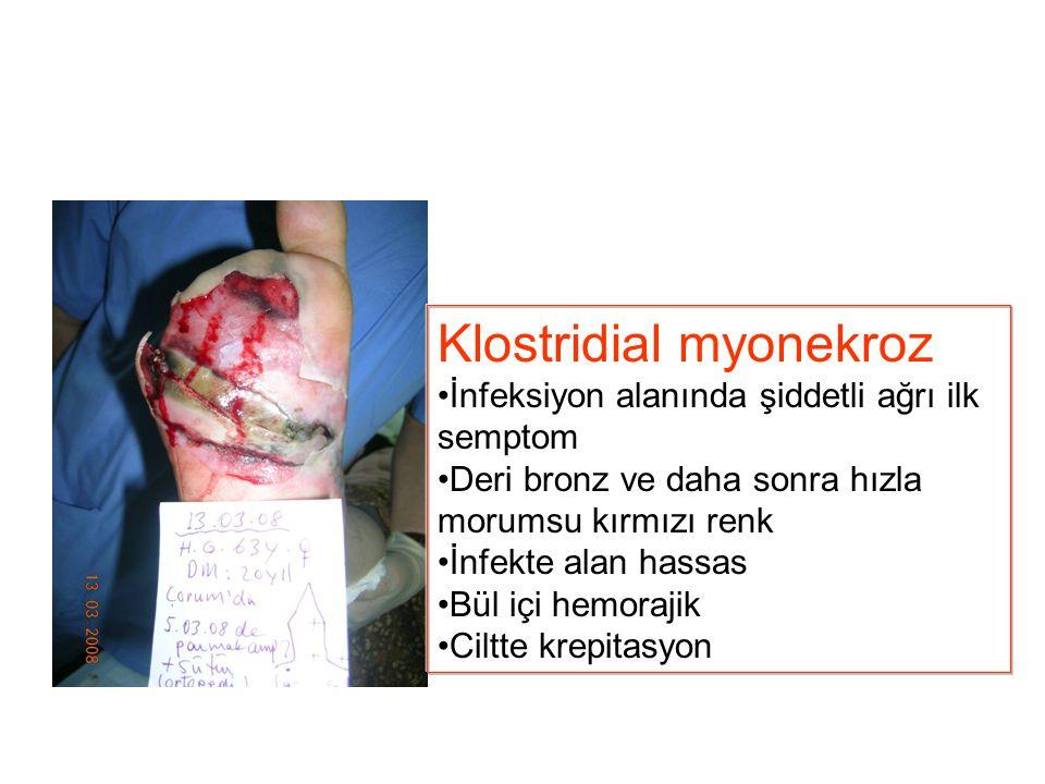 Klostridial myonekroz
