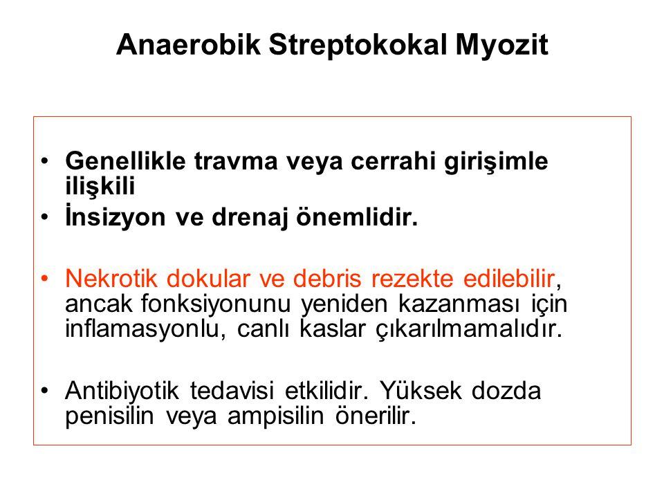 Anaerobik Streptokokal Myozit