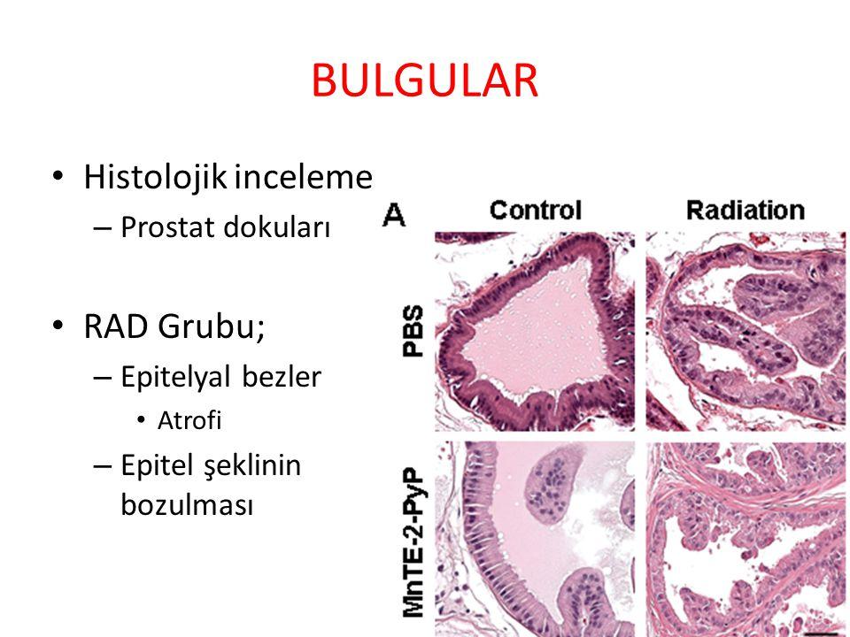 BULGULAR Histolojik inceleme RAD Grubu; Prostat dokuları