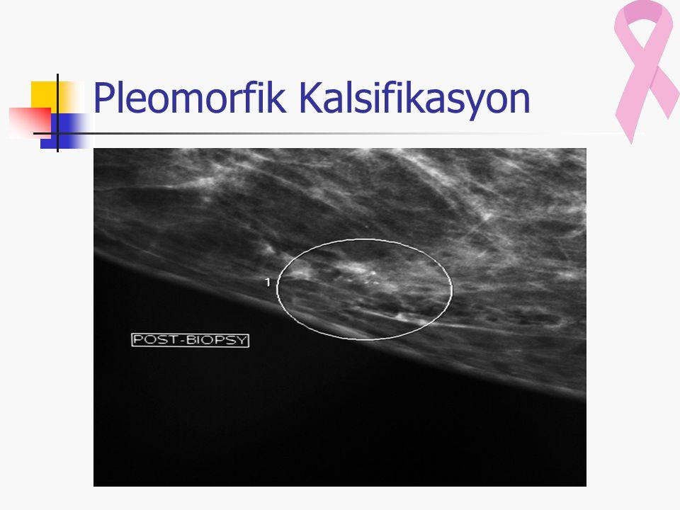 Pleomorfik Kalsifikasyon