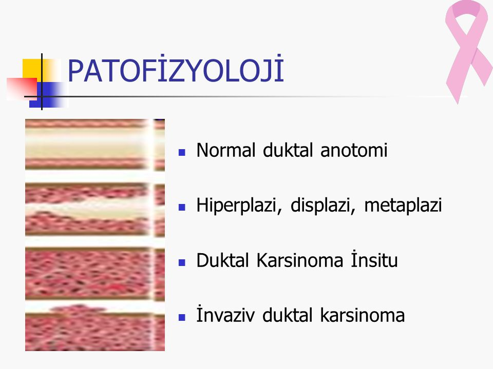PATOFİZYOLOJİ Normal duktal anotomi Hiperplazi, displazi, metaplazi