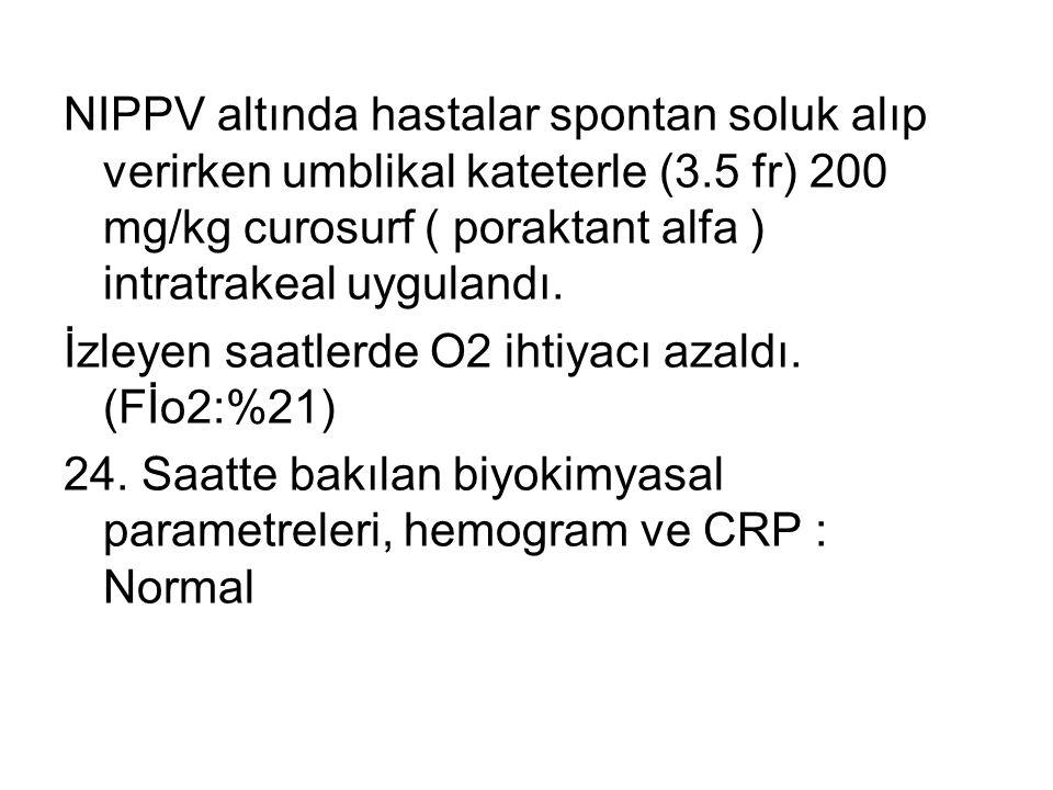 NIPPV altında hastalar spontan soluk alıp verirken umblikal kateterle (3.5 fr) 200 mg/kg curosurf ( poraktant alfa ) intratrakeal uygulandı.