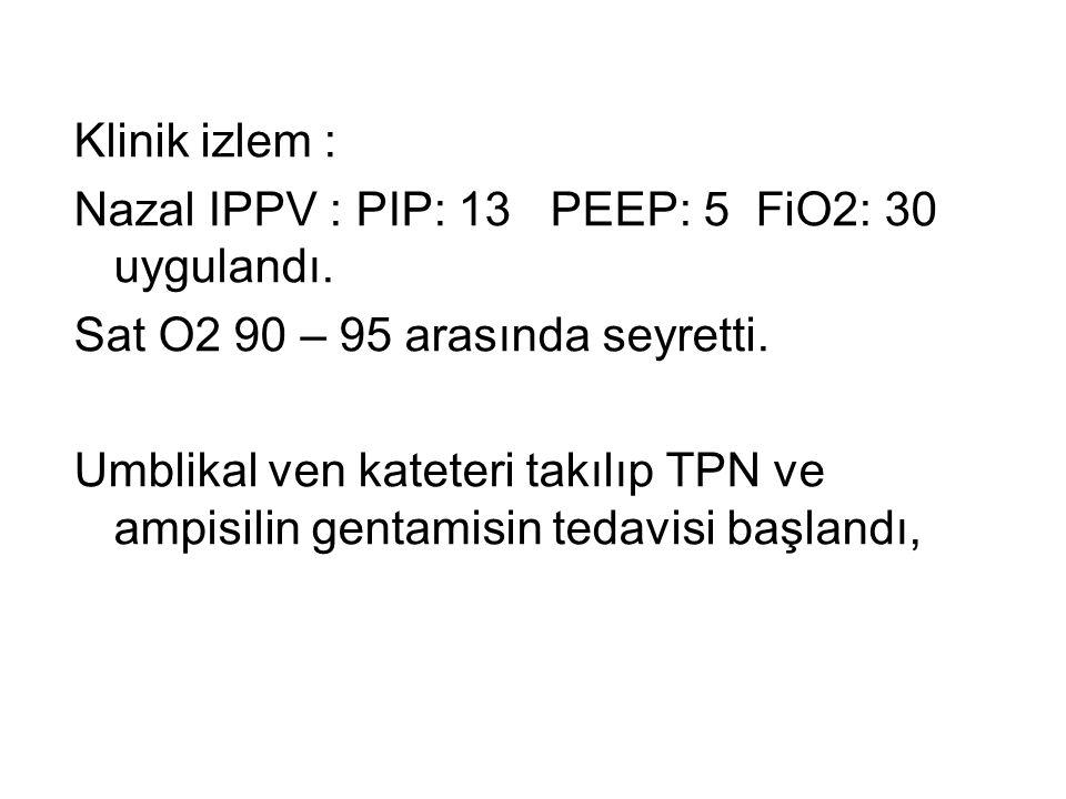 Klinik izlem : Nazal IPPV : PIP: 13 PEEP: 5 FiO2: 30 uygulandı. Sat O2 90 – 95 arasında seyretti.