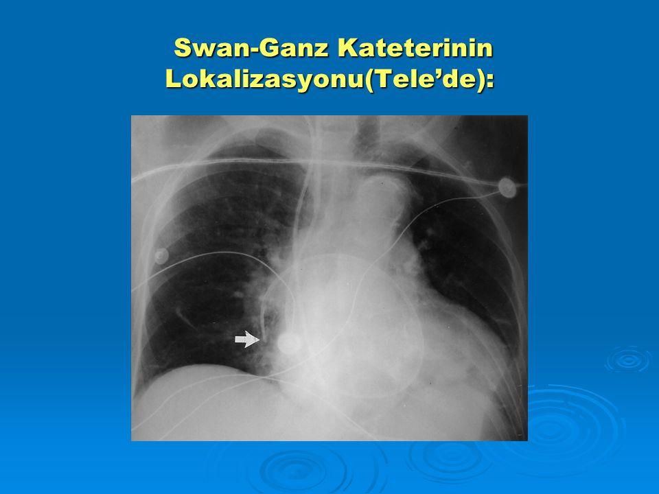 Swan-Ganz Kateterinin Lokalizasyonu(Tele'de):