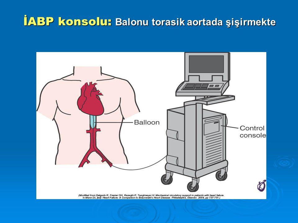 İABP konsolu: Balonu torasik aortada şişirmekte