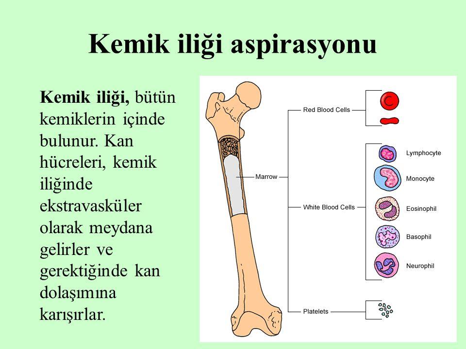 Kemik iliği aspirasyonu